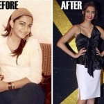 The Curious Case of Sonam Kapoor's Weight Loss